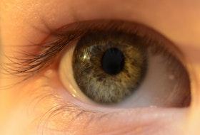 eye eyelash eyelid 9389 1 - Iridology