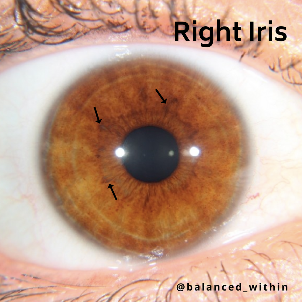 iris indication 1024x1024 - What Iridology Can Reveal?